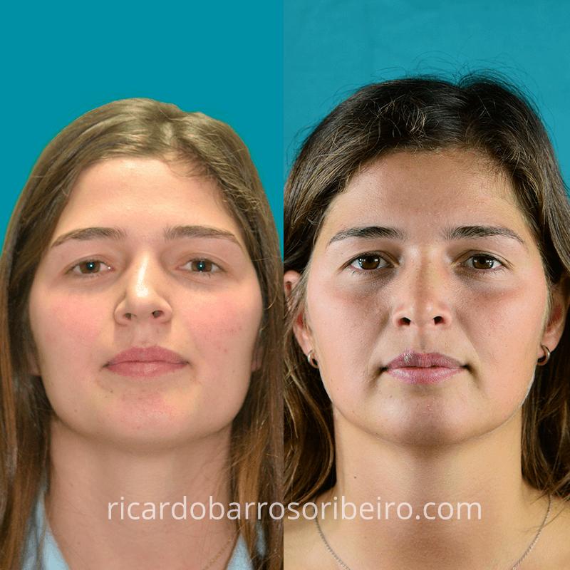 caso-clínico-20-rinoplastia